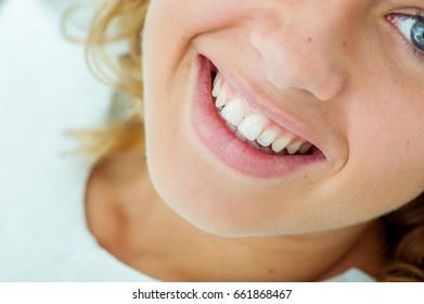 woman visting dentist to make her teeth