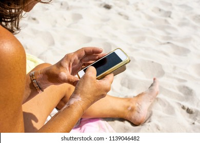 Woman with vitiligo on her hands is using a phone and gets suntanned on the beach