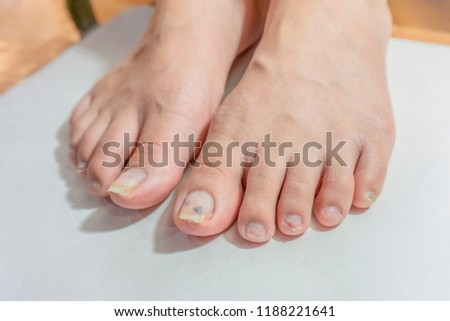 Woman Weak Toenails Damaged Unprofessional Workunhealthy Stock Photo ...