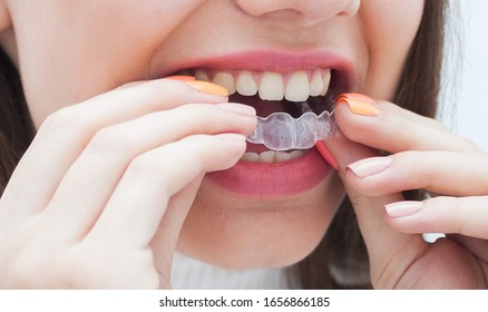 Woman wearing orthodontic silicone trainer. Invisible braces aligner