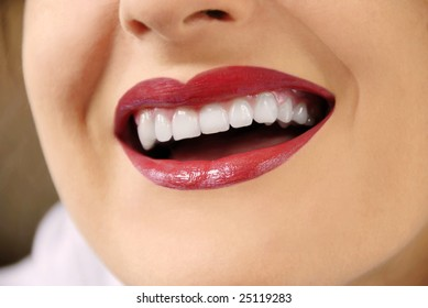 woman with white teeth and red lips laughing