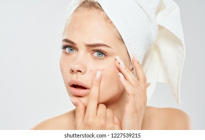 woman with a white towel on her head squeezes acne on her face