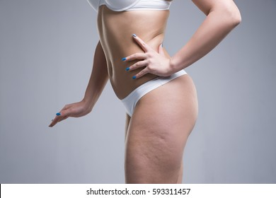 Woman in white underwear on gray background, cellulite on female body, studio shot
