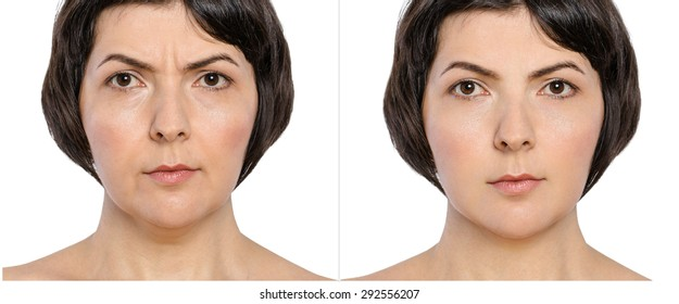 Woman with and without  aging singes, double chin, worry wrinkles, nasolabial folds before and after cosmetic or plastic procedure, anti-age therapy