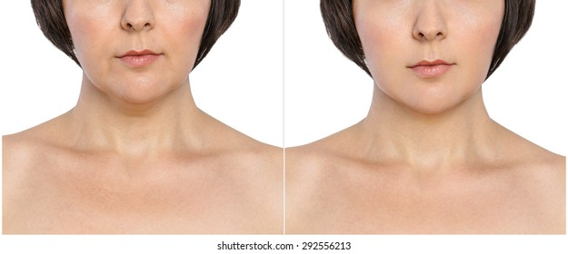 Woman with and without  aging singes, double chin,  nasolabial folds before and after cosmetic or plastic procedure, anti-age therapy