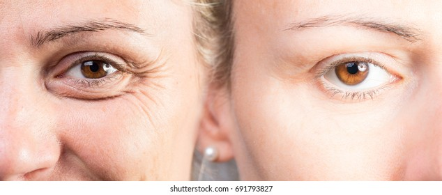 Woman with and without puffy eye before and after cosmetic treatment