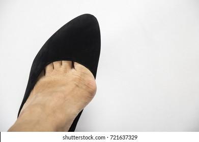 woman wore stilettos. Hallux valgus using narrow shoes.on a white background