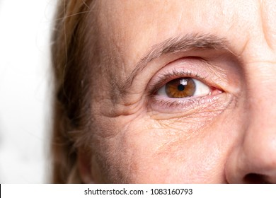 Woman wrinkled eye with crow'sfeet and under eye bags