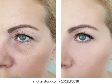 woman wrinkles   after correction procedures