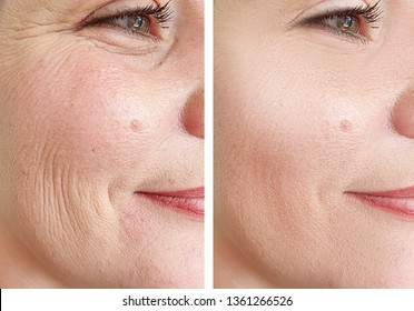 woman wrinkles face   after cosmetology procedures