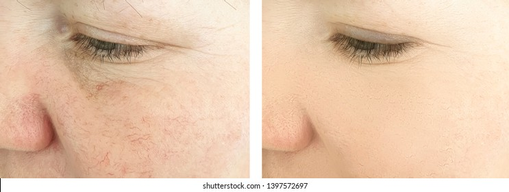 woman wrinkles face   after procedures, rosacea