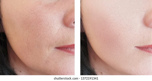 woman wrinkles face   after treatments