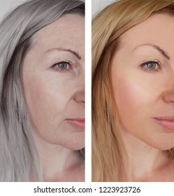 woman wrinkles face before and after aging concept