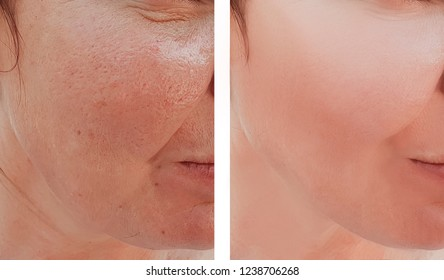 woman wrinkles face before and after procedures