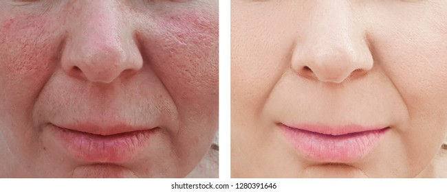 woman wrinkles face before and after treatment
