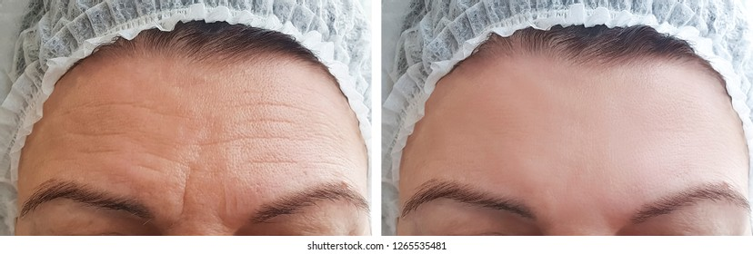 Woman wrinkles forehead before and after procedures