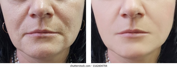 woman wrinkles on face before and after cosmetic procedures