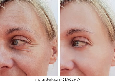 woman wrinkles on face before and after anti-aging procedures