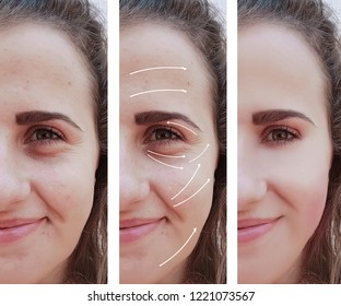 woman, wrinkles on face, correction before and after procedures, arrow