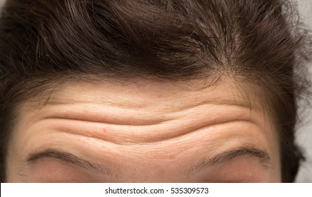 Woman with wrinkles on the forehead