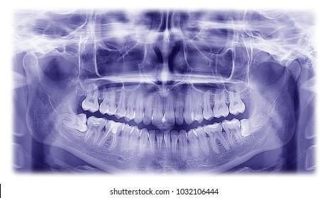 Woman x-ray of the teeth wisdom teeth horizontal pozition problem dentistry medicine