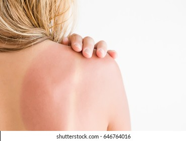 Woman's back skin hurt from sun burn.