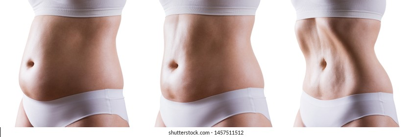 Woman's body before and after weight loss, woman doing vacuum exercise, isolated on white background, composite image of three photos