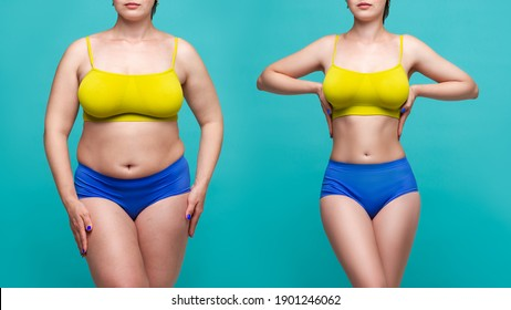 Woman's body before and after weight loss on blue background, plastic surgery concept