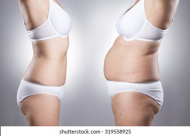 Woman's body before and after weight loss on a gray background