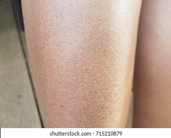 a woman's dry flaky itchy legs