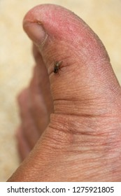 Woman's dry skin on foot with Housefly, Close up & Macro shot, Selective focus, Asian body skin part, Healthcare concept