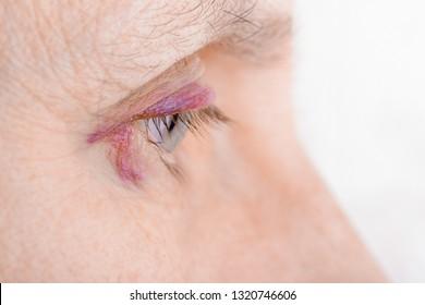 hematoma versus equimosis