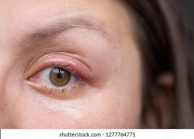 Woman's eye with sty.