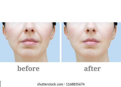 A woman's face with wrinkles. Before and after.