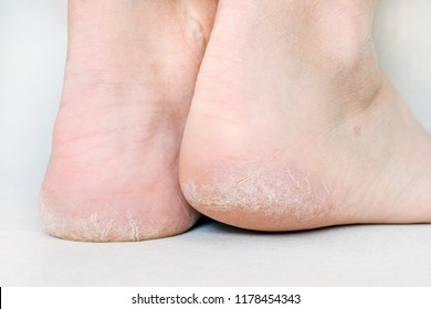 womans feet with dry heels, cracked skin