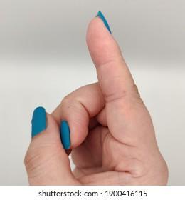 woman's fingers showing skin moles freckles in fingers