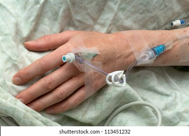 A woman's hand with intravenous needle and tubes for medication during surgery
