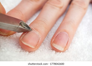 Woman's hand removing nail cuticle on light white table. Care about dry, overgrown cuticle. Closeup.
