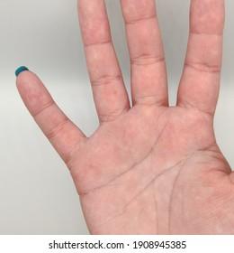 woman's hand showing a skin mole inside lunar finger