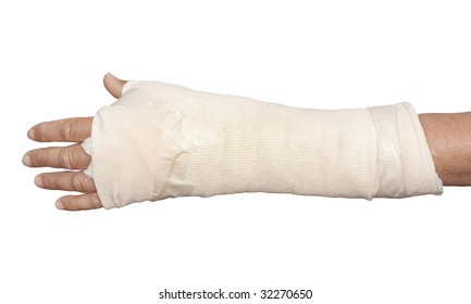 Woman's left arm in cast and bandage