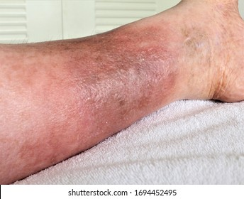 A woman's leg is shown, she is suffering from Chronic Venous Insufficiency with mild cellulitis in her legs. In bed as she rest to relieve heaviness, swelling, pain  redness in the leg.