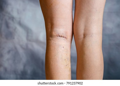 Womans legs after phlebectomy, with visible surgical sutures (stitches) and wounds on one leg. Curative treatment, esthetic procedures, thrombosis prevention and senior health care concept.