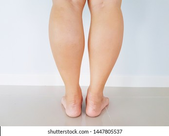 A woman's legs.  Big calfs from walking a lot. Health and beauty problem.