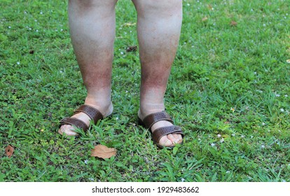 A woman's legs are shown, she is suffering from Chronic Venous Insufficiency with mild cellulitis in her legs. She is walking and exercising to relieve heaviness, swelling, pain and redness in the leg