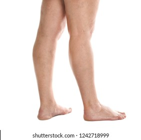 Woman's legs with varicose on white background, closeup