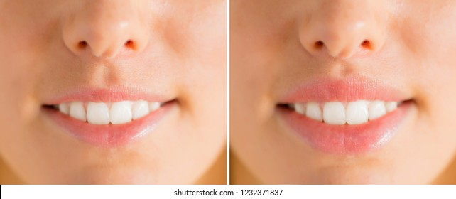 Woman's lips before and after filler injections