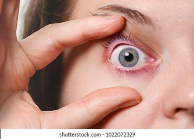 Woman`s red eye. Ill woman has conjunctivitis after fever attack. Problems with blood vesseles. Inflamed eye. Female has red eye after long work at computer.
