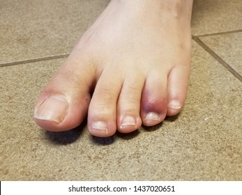 Stubbed toe purple