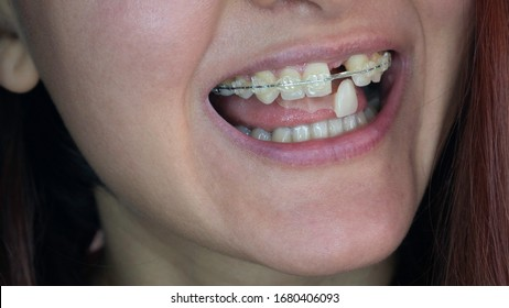 A woman's smile. Smile without upper left unit teeth. Tooth model with metal wire dental brace. Single Missing Tooth - Removable partial denture. One false plastic tooth.