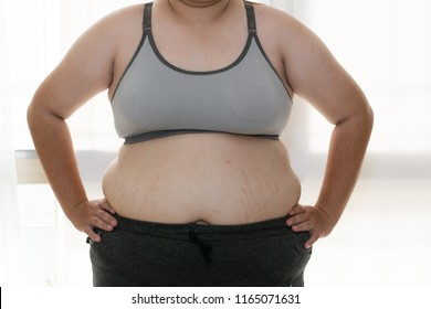Women with abdominal fat, flatulence, female abdomen stretch marks near the white background.